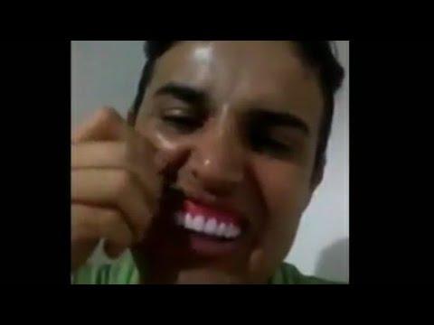 Rapaz Comprou Dente Pela Internet Olha Que Aconteceu Youtube