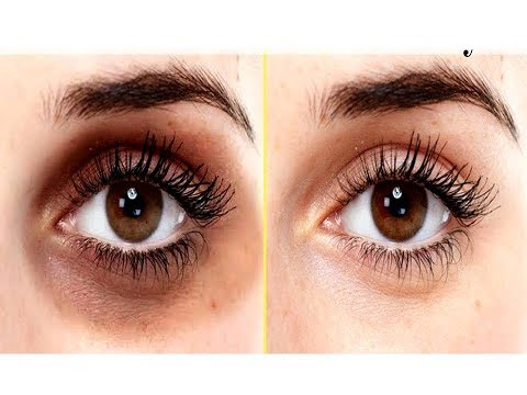 (100%-results)-how-to-remove-dark-circles-naturally-in-3-days