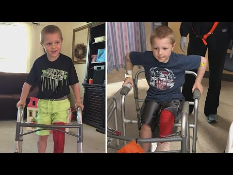 6-Year-Old Boy Loses Foot In Lawnmower Accident