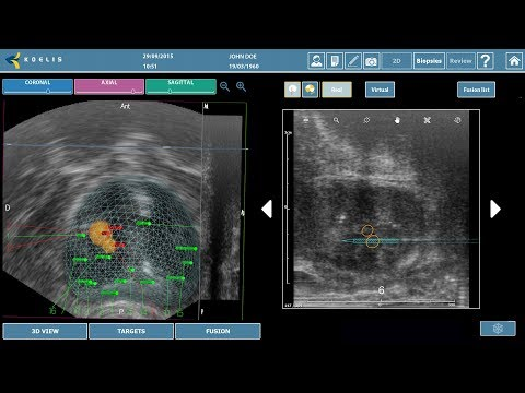 Freehand 3D Targeted Prostate Biopsy using MR-Ultrasound Fusion - Trinity®