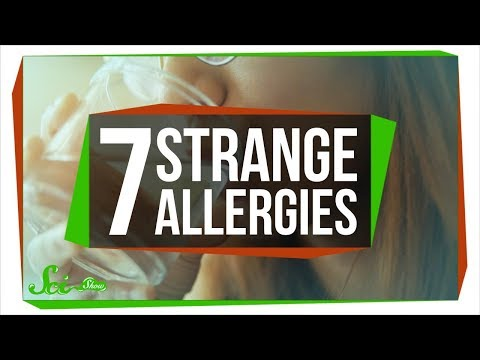 7 of the Strangest Allergies