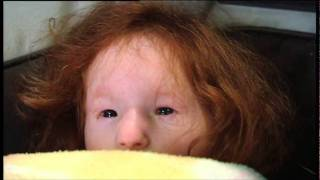 Extraordinary People: The Tiniest Girl In The World