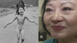 """43 Jahre Schmerzen: Eine Laserbehandlung für das """"Napalm-Mädchen"""""""
