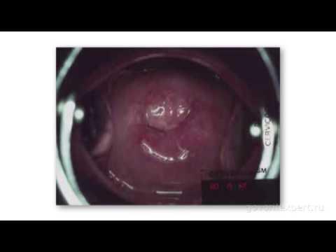 Домашнее лечение псориаза солидолом