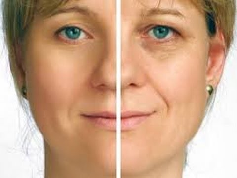 Get Rid Of Eye Bags Quickly Using Home Remes