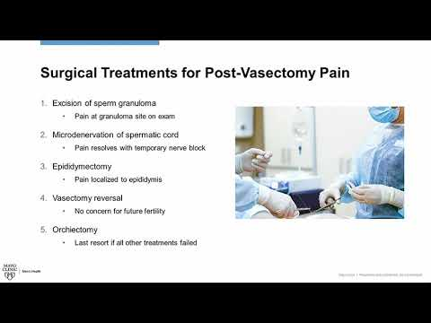Mayo Clinic Video discussing Post Vasectomy Pain - Library