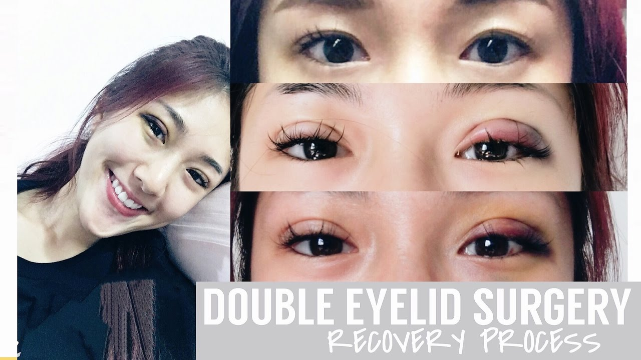 Can I Wear Makeup After Double Eyelid Surgery | Makeupview co