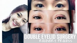 Non-Invasive Double Eyelid Procedure - Recovery Process || FATFOAL