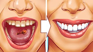 Dişlerinizdeki Tartardan Kurtulmanın 10 Doğal Yolu