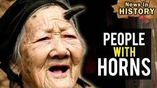 Shocking Cases Of People With Horns - News In History