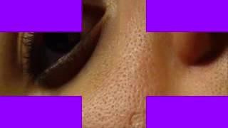 وصفة مغربية لغلق ثقوب الوجه(المسامات الواسعة)فعالة