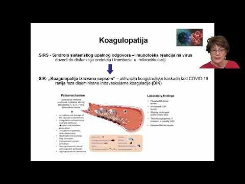 Šupe - Rizik moždanog udara usljed infekcije COVID-19 virusom