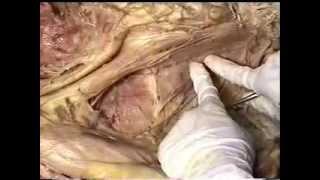 Gross Anatomy: Abdominal Muscles; Lumbar Plexus