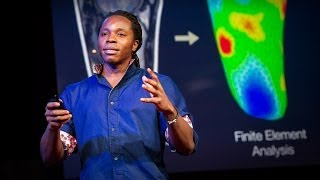 David Sengeh: The sore problem of prosthetic limbs(What drove David Sengeh to create a more comfortable prosthetic limb? He grew up in Sierra Leone, and too many of the people he loves are missing limbs ..., 2014-04-10T15:28:45.000Z)