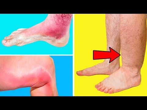 he-thought-that-a-swollen-leg-may-can't-be-a-sign-of-thrombosis-but-the-doctor-proved-him-wrong