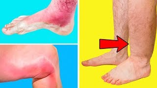 He Thought That A Swollen Leg May Can't Be A Sign of Thrombosis But The Doctor Proved Him Wrong
