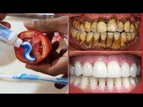 Magical Teeth Whitening Remedy, Toothpaste Tomatoes Mixed Scrub Face Beauty Tips