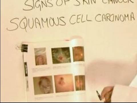 How to Identify Skin Cancer : Signs of Squamous Cell Carcinoma Skin Cancer