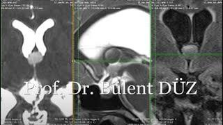 Kolloid Kist endoskopik ameliyat - Prof. Dr. Bülent DÜZ