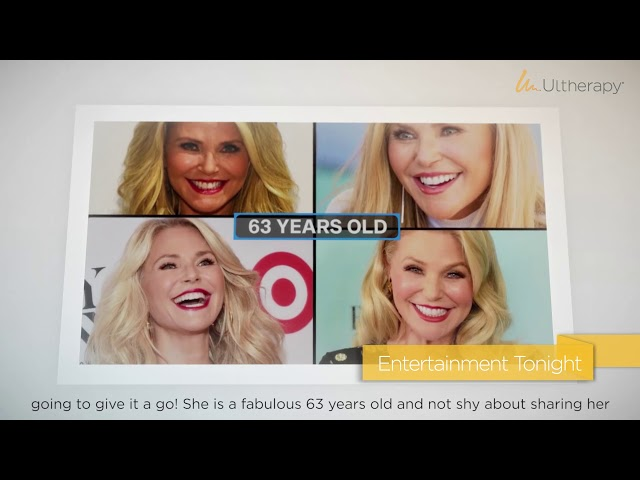Ultherapy Christie Brinkley In-Office Video Loop | Beverly Hills Rejuvenation Center