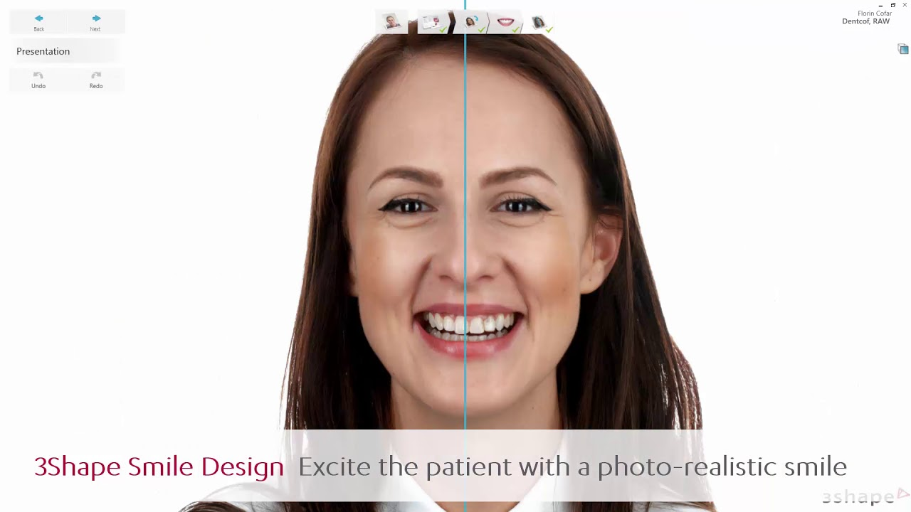 3Shape Smile Design | Dental News What I need To Know About
