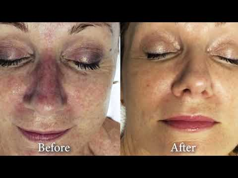IPL / BBL PhotoRejuvenation Skin Rejuvenation Vancouver Call (604) 696-5506