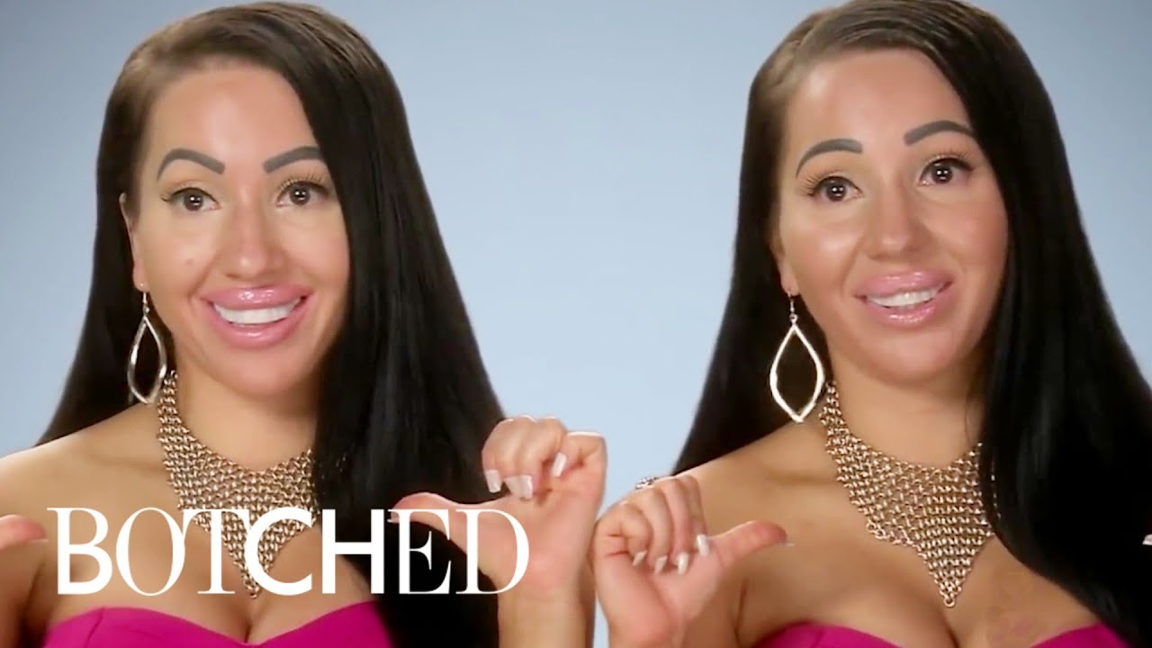 """Download Twins Who've Been on """"Botched"""" 