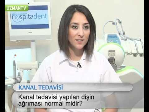 Kanal tedavisi yapılan diş ağrı yapar mı?-Miray Uyan