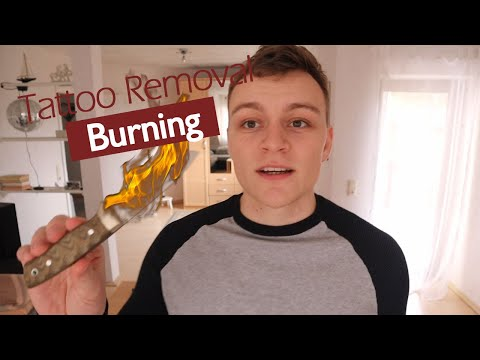 burning-a-tattoo-off---how-to-not-remove-a-tattoo-at-home