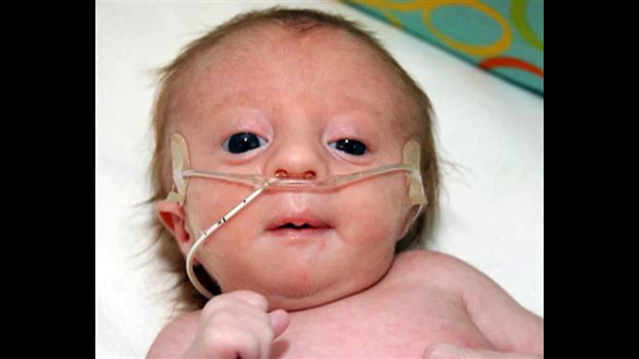 What is Edwards syndrome 9