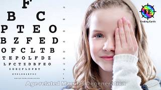 AMD(Age Related Macular Degeneration)