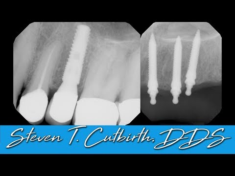 Penetration Of Maxillary Sinus By Implants - With Steven T. Cutbirth, DDS