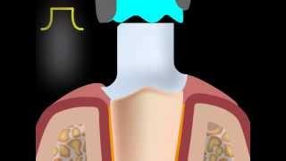 Обточка с выемкой(Для подготовки зуба под коронку применяются различные виды обточки. Один из них -- обточка с выемкой. http://www.d..., 2013-11-23T18:41:36.000Z)