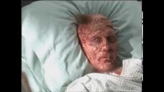 Norm Macdonald Back to Norm Burn Victim sketch
