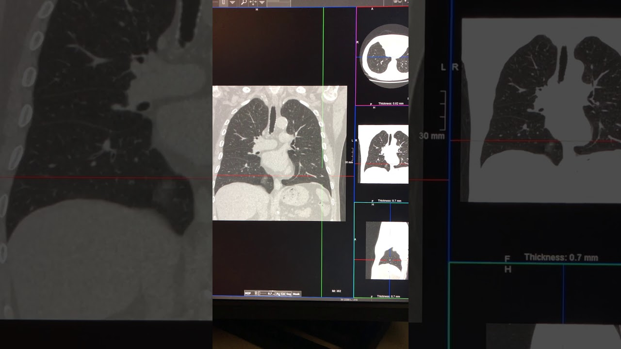 CT lung nodule assessment – how to assess them – basics