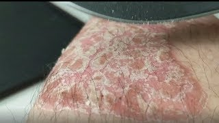 Flakes For a Good Cause [Psoriasis]