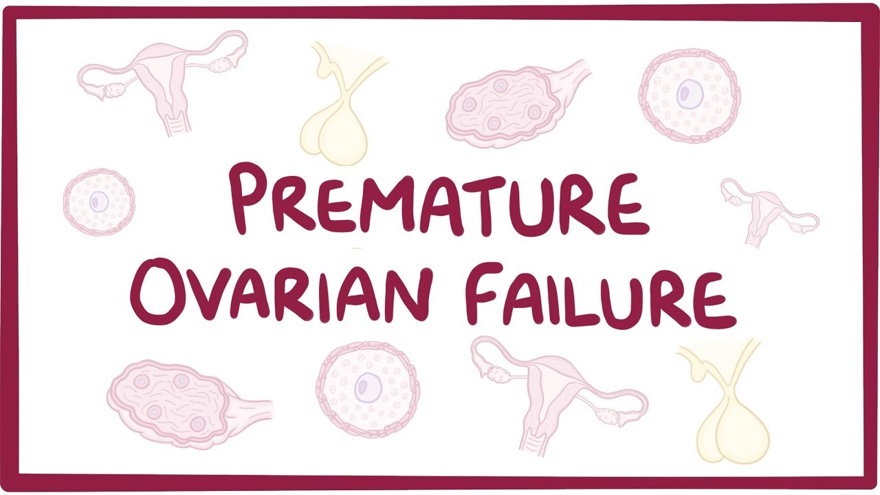Pre mature ovarian failure authoritative point