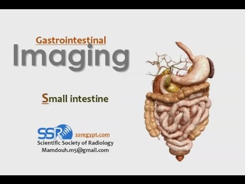 Small Bowel Imaging I - Prof. Dr. Mamdouh Mahfouz (In Arabic)
