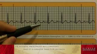 EKG Training: An Introduction to Bradycardia - Heart Blocks, Part 1 of 3