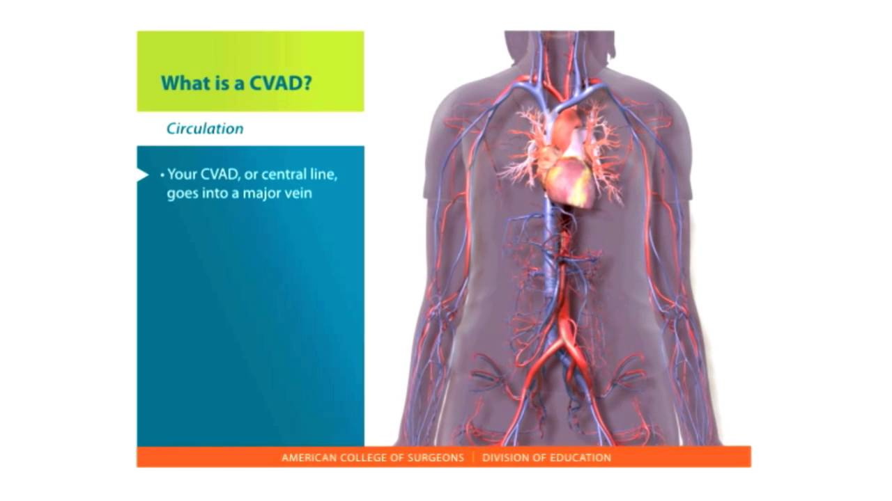 Central Lines Skills: What is a CVAD - YouTube