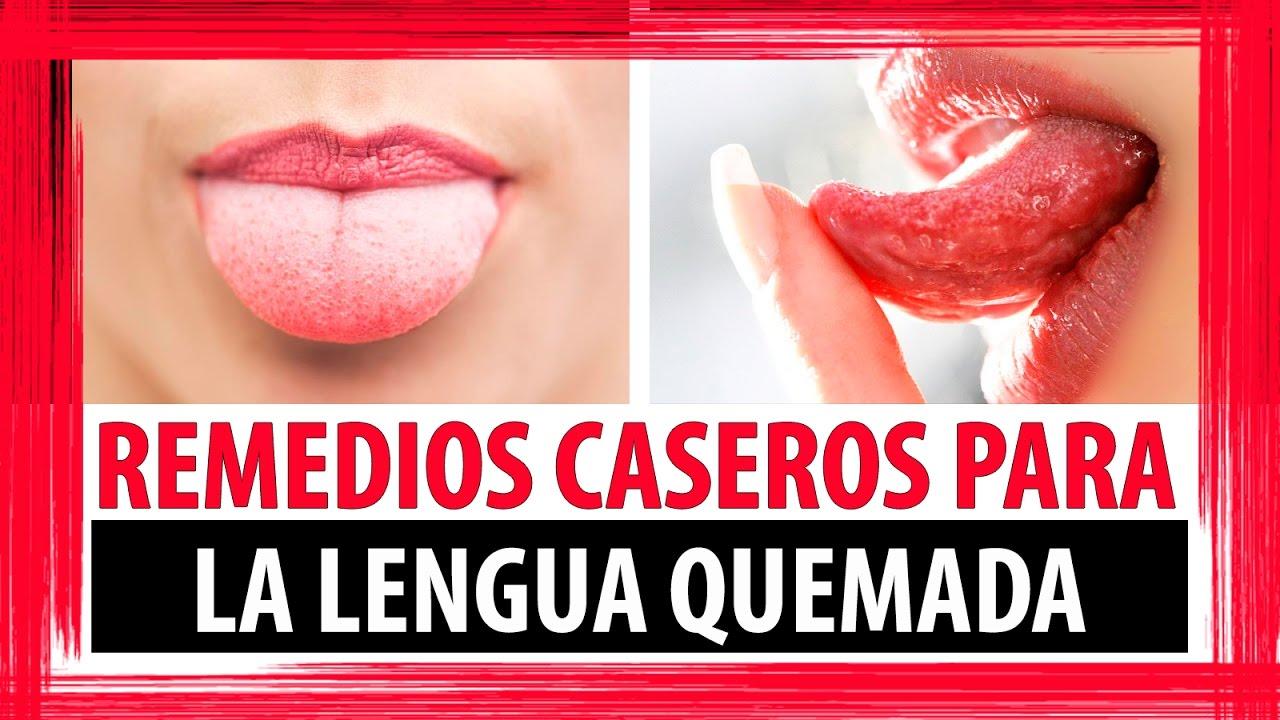 Remedios caseros para lengua quemada como curar la - Sequedad de boca remedios naturales ...