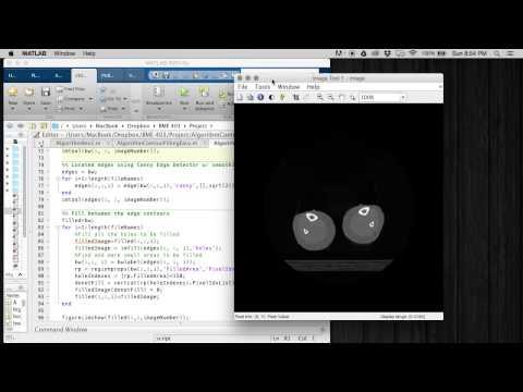 Automatic Segmentation and Reconstruction Algorithm