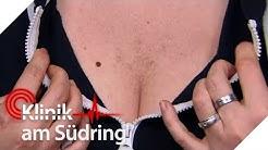 Dunkle Brusthaare als Frau! Wird sie zum Mann? | Klinik am Südring | SAT.1 TV