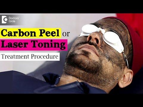 Treating Pigmentation using Carbon Peel | Laser Toning Treatment Video - Dr. Rajdeep Mysore