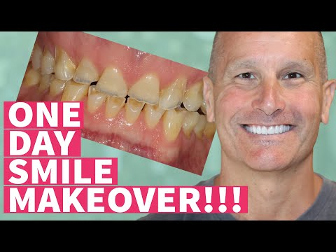 New Teeth in One Day Smile Makeover with Dental Veneers and