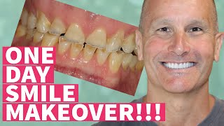 New Teeth in One Day Smile Makeover with Dental Veneers and Crowns