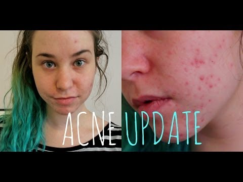 acne-update:-birth-control,-lemon-juice,-and-acne-scars