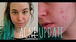 hqdefault - Does Birth Control Help Acne Scars
