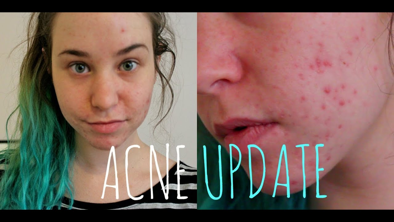 ACNE UPDATE: Birth Control, Lemon Juice, and Acne Scars ...