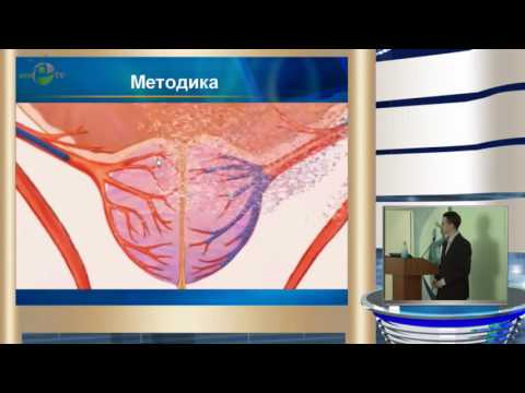Неймарк Б А - Суперселективная эмболизация простатических артерий в лечении больных с ДГПЖ